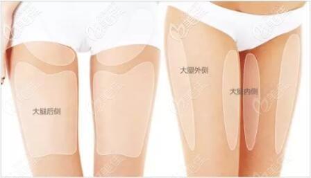 大腿环吸的位置