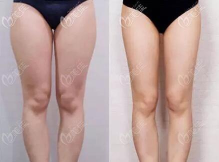 大腿环吸真人前后对比照