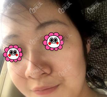 北京星医汇医疗美容门诊部孔彦霞术前照片1