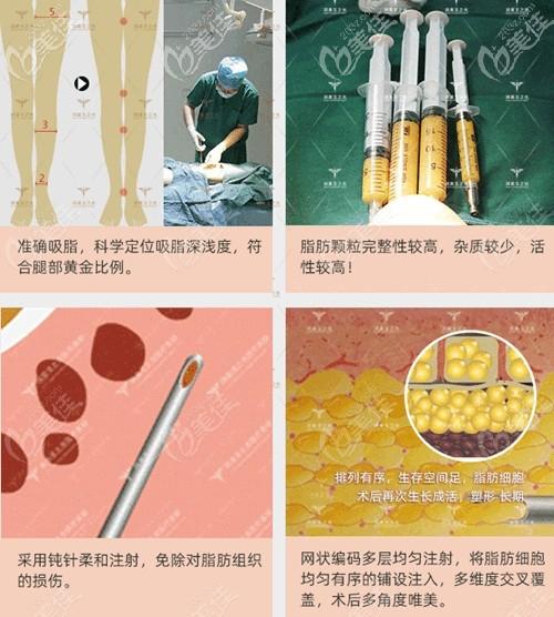 北京润美玉之光O型腿矫正过程