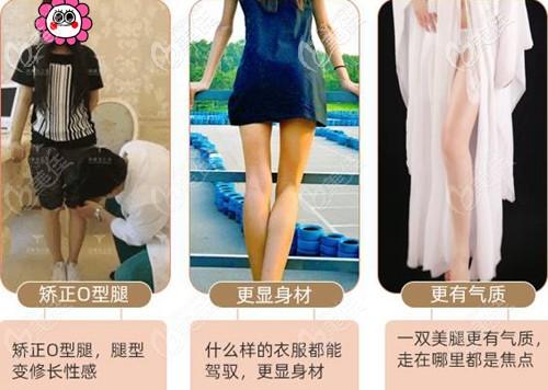 北京润美玉之光O型腿脂肪填充案例