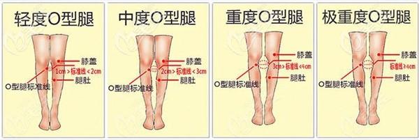 北京达美如艺矫正O型腿类型
