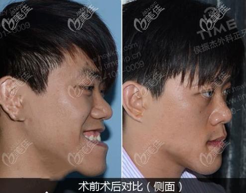 正颌手术矫正地包天效果图