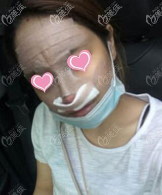 鼻综合术后当天照