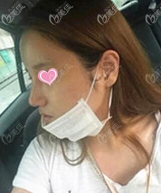 鼻综合术后一周拆线效果