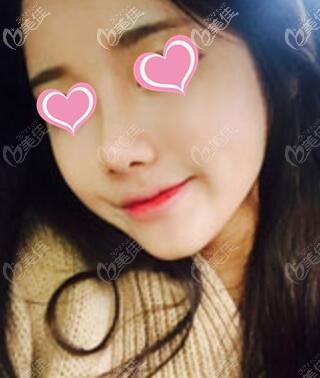 韩国id整形医院到底怎么样?真人做自体肋软骨鼻综合的真实经历反馈!