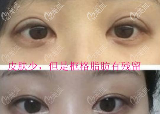 全切双眼皮过宽过深还凹进去了,皮肤少,但是框格脂肪有残留