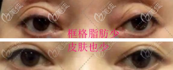 全切双眼皮过宽过深还凹进去了,框格脂肪少,皮肤也少
