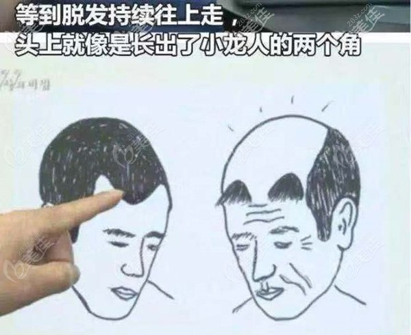 植发后用米诺和非那可能会出现的情况