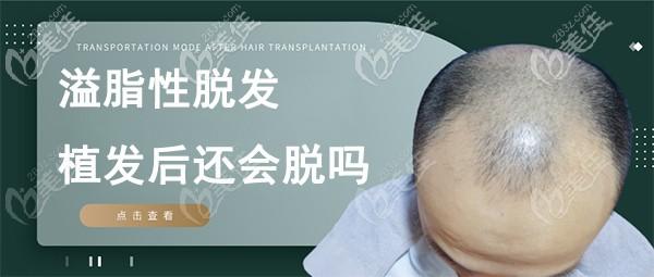 脂溢性脱发植发后还会出现掉发脱发情况吗?