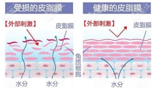 受损的皮脂膜和健康的皮脂膜之间的对比