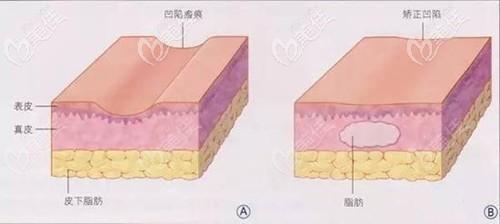 面部脂肪填充前后对比