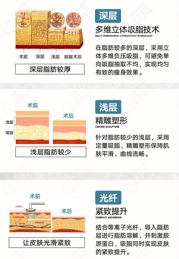 四川省人民医院东篱医院3月女神节价格表驾到!你猜腰腹吸脂多少钱?