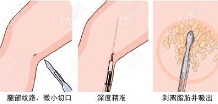 大腿抽脂过程