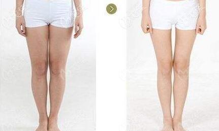 大腿吸脂前后对比照