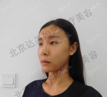 北京达美如艺医疗美容门诊部谷廷敏术前照片1
