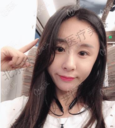 北京达美如艺医疗美容门诊部谷廷敏术后照片1