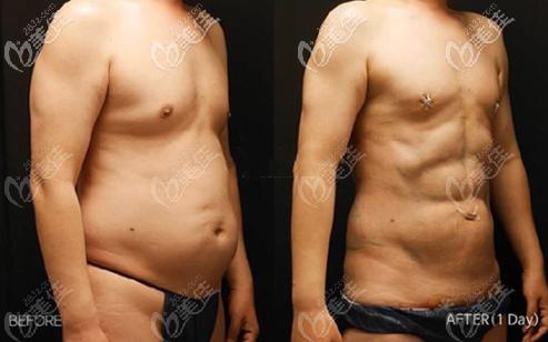 安敬天5D腰腹吸脂塑造男士八块腹肌案例