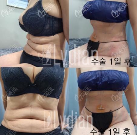 安敬天5D脂肪雕刻术塑造小蛮腰效果图