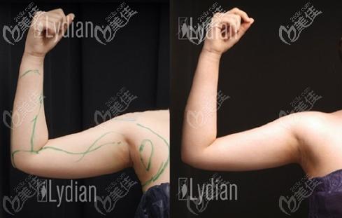 韩国丽迪安手臂吸脂效果图