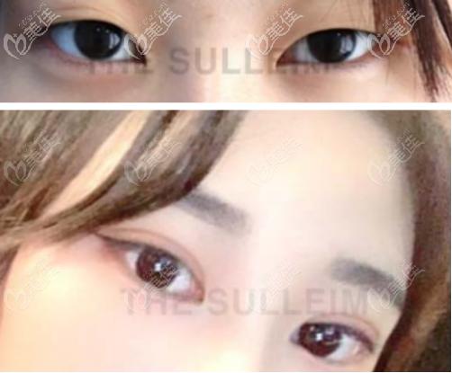 韩国Sulleim心动整形医院做双眼皮手术怎么样?用几组案例来证明