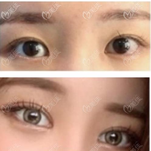韩国Sulleim心动整形医院双眼皮整形案例五