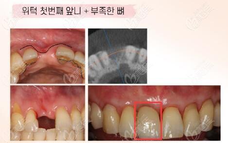 晒出韩国Goodlife牙科种植一颗前门牙的过程和效果图