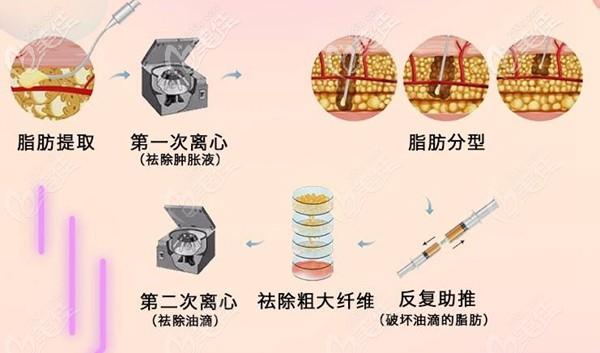 深圳阳光SVF脂肪胶填充过程