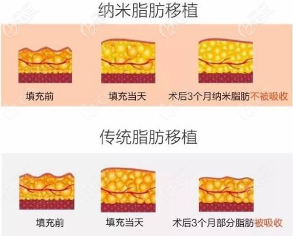 深圳艺星纳米脂肪填充效果