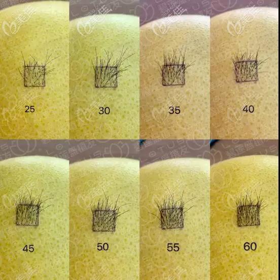 植发一平方厘米是多少株头发