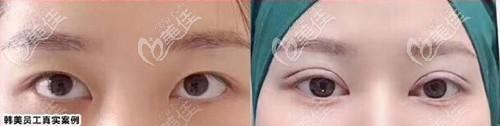 泸州韩美双眼皮案例