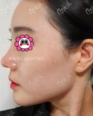 在韩国做耳软骨鼻综合没我想的那么疼,恢复有一个多月就比较自然了