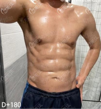 韩国丽迪安吸脂案例:安敬天男性腰腹部吸脂打造腹肌效果图
