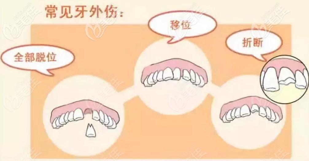 常见的牙外伤