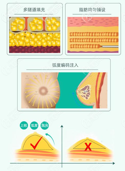 北京润美玉之光丰胸采用编码注射手法