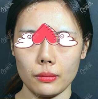 挛缩鼻图片