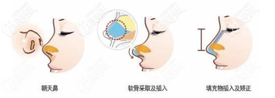 挛缩鼻修复方法
