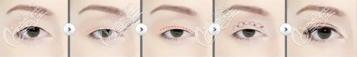 自然粘连法双眼皮是怎么样的?从手术原理了解