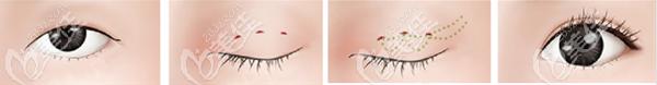 埋线双眼皮手术原理示意图