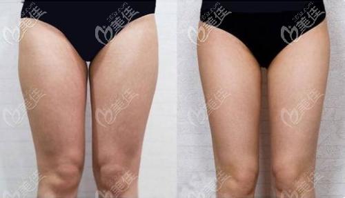 李烈大腿吸脂案例