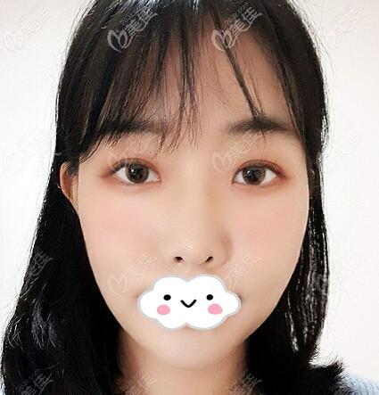 韩国优雅人整形医院做的7.5mm平行型双眼皮眼综合真人案例效果图公开!