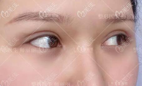 师丽丽全切双眼皮修复案例反馈:对眼皮未造成伤害,而且恢复2个多月也自然了
