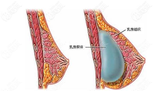 隆胸假体放在乳腺下