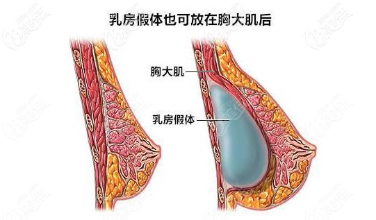 隆胸假体放在胸大肌下