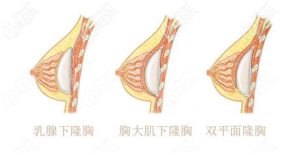 隆胸假体放在哪个层次手感更好一些