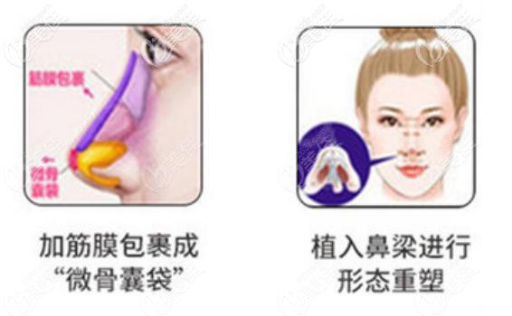 软糖半肋软骨真空隆鼻其实是用筋膜包裹的