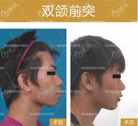 提供广州周会喜医生正颌手术案例及价格,方便你了解周会喜医生正颌技术