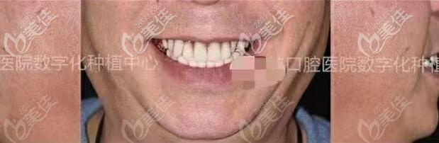 75岁男患者在深圳种植10颗牙的亲身体验分享,使用了10年的真实感受
