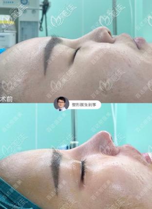 重庆百达丽全肋鼻综合+宽鼻内推效果图