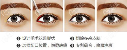 福州名韩双眼皮手术过程